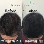 前頭部before・after:難波でAGA・薄毛治療といえば/Dr.スキンクリニック大阪難波院